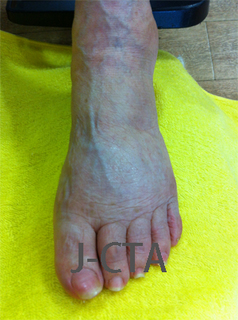foot1 after.jpg